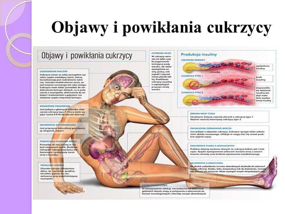 http://medtube.pl/inne/filmy- medyczne/8838-nefropatia-cukrzycowa