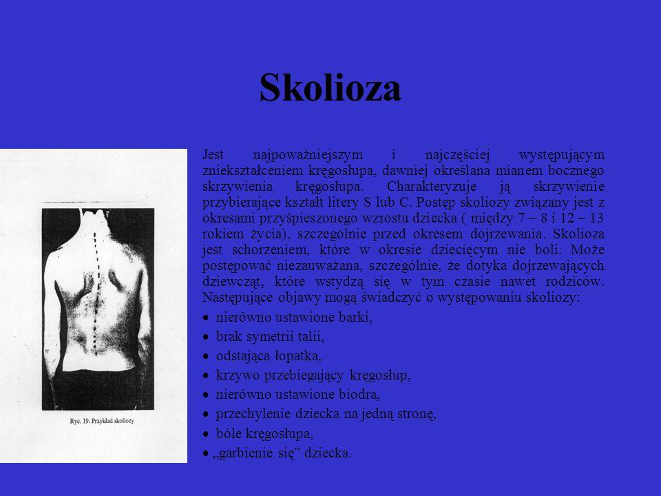 Skolioza Jest najpoważniejszym i najczęściej występującym zniekształceniem kręgosłupa, dawniej określana mianem bocznego skrzywienia kręgosłupa.