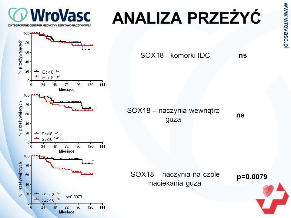 PODSUMOWANIE SOX18 może brać udział w progresji IDC, w szczególności w przypadku guzów wykazujących ekspresję receptora HER2 ekspresja SOX18 występuje zarówno w komórkach śródbłonka naczyń krwionośnych i limfatycznych analiza statystyczna wykazała krótsze przeżycia pacjentek charakteryzujących się wysoką ekspresją naczyń SOX18 w obszarze otaczającym guz ekspresja SOX18 w IDC w przyszłości może być wykorzystana jako potencjalny cel w terapii przeciwnowotworowej