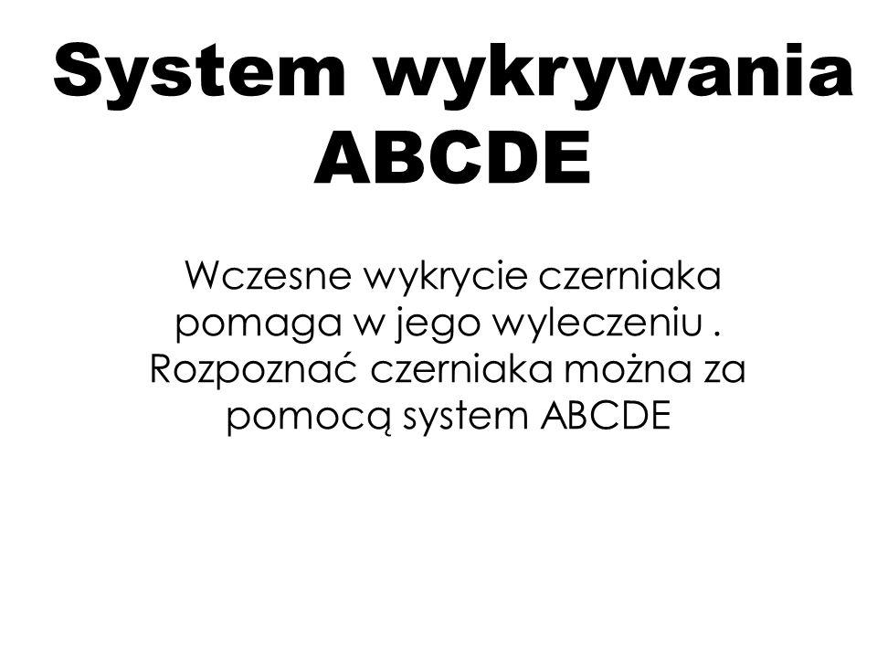 A – asymetria. Zwykłe znamiona są symetryczne a wczesne postacie czerniaka cechuje asymetria.