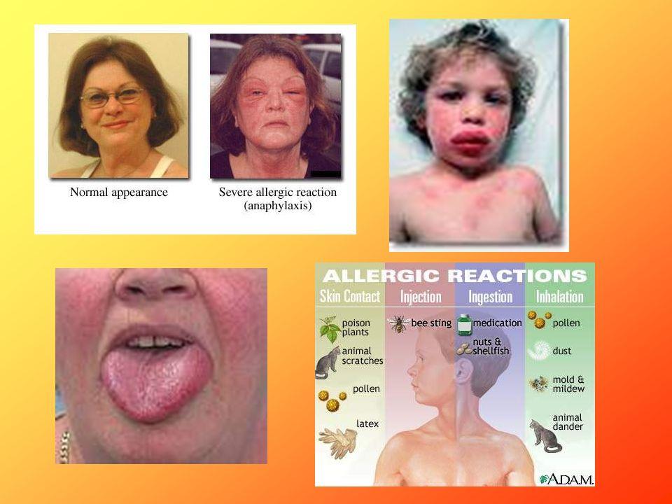 Anafilaktyczny: Leczenie: - lek pierwszego rzutu – Adrenalina (iv, dotchawiczo lub sc) -glikokortykoidy – prednizolon 10mg/kg -Leki przeciwhistaminowe: klemastyna 0,0025 – 0,05 mg/kg) -Płyny iv (0,9% NaCl - 20 ml/kg przez 10 min) Wstrząs