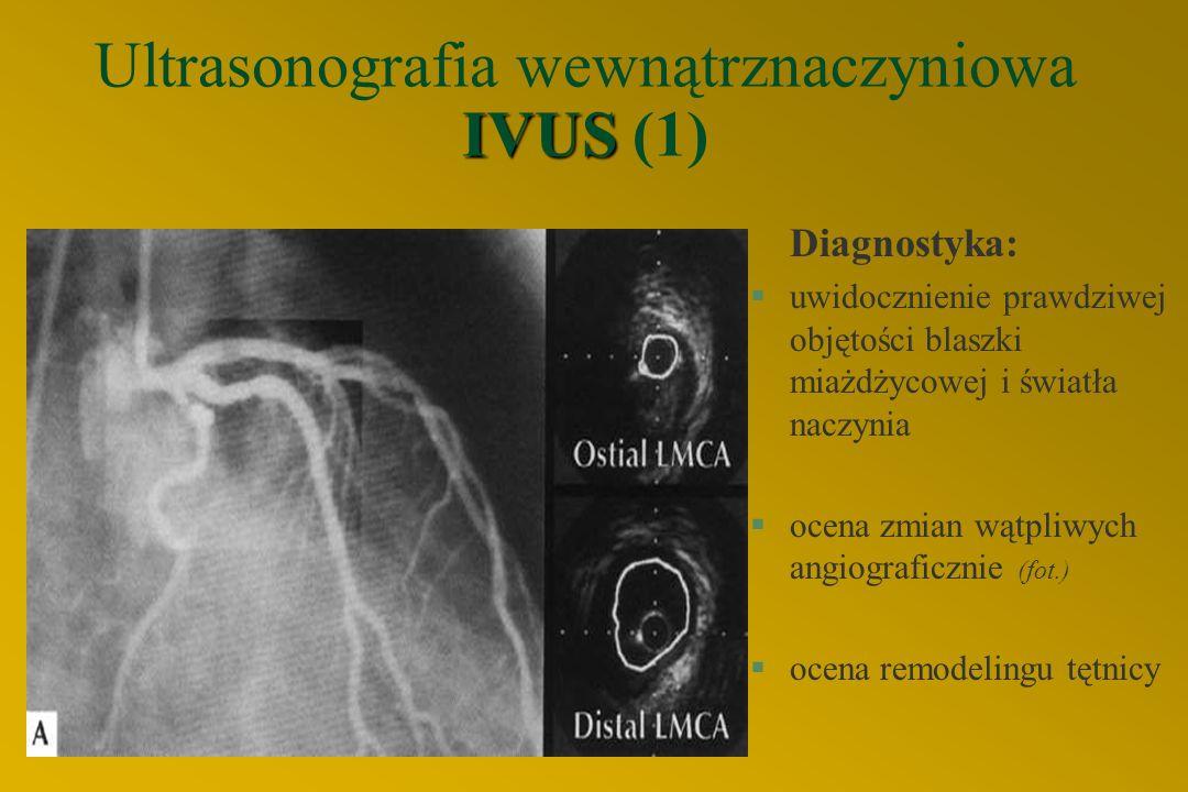 IVUS Ultrasonografia wewnątrznaczyniowa IVUS (1) Diagnostyka: §uwidocznienie prawdziwej objętości blaszki miażdżycowej i światła naczynia §ocena zmian wątpliwych angiograficznie (fot.) §ocena remodelingu tętnicy