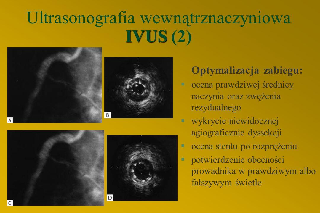 IVUS Ultrasonografia wewnątrznaczyniowa IVUS (2) Optymalizacja zabiegu: §ocena prawdziwej średnicy naczynia oraz zwężenia rezydualnego §wykrycie niewidocznej agiograficznie dyssekcji §ocena stentu po rozprężeniu §potwierdzenie obecności prowadnika w prawdziwym albo fałszywym świetle