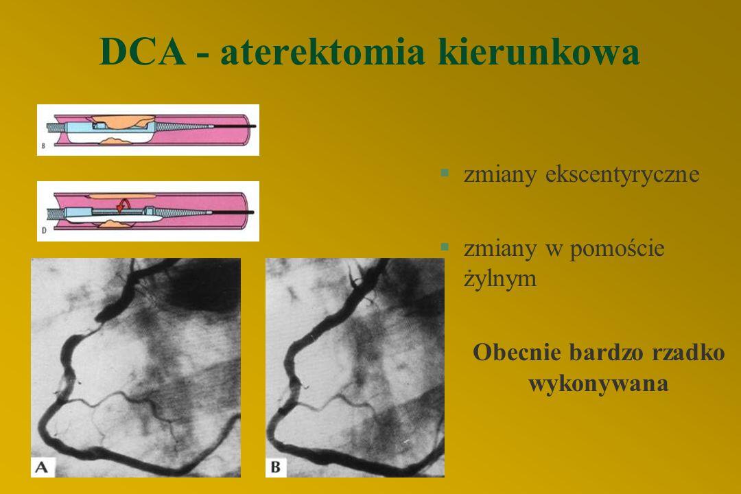 DCA - aterektomia kierunkowa §zmiany ekscentyryczne §zmiany w pomoście żylnym Obecnie bardzo rzadko wykonywana