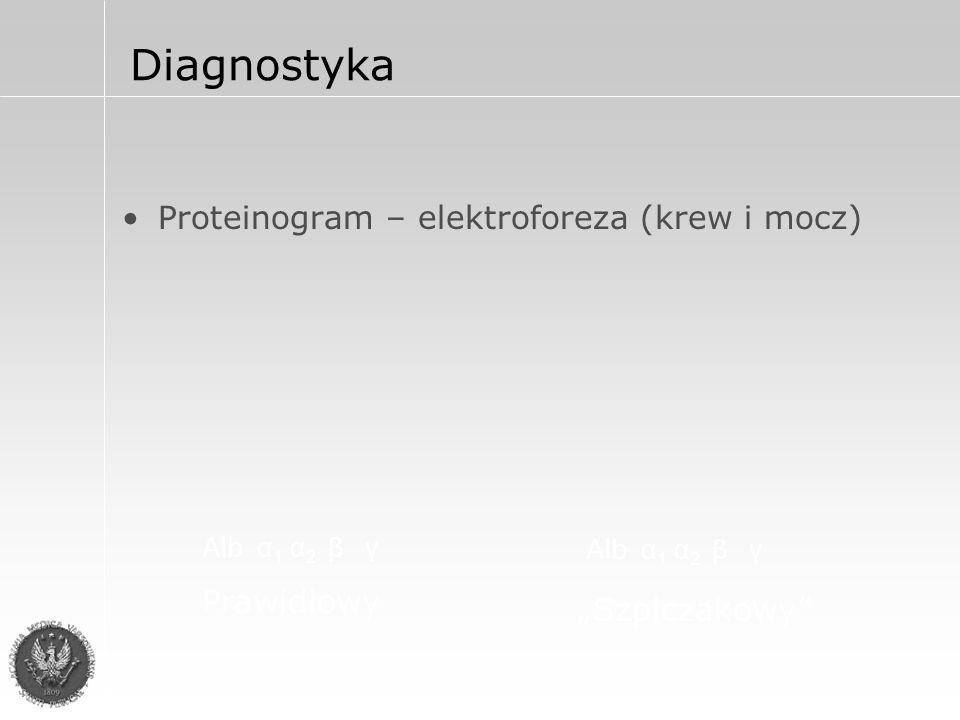Rozpoznanie Kryteria duże Obecność plazmocytów w biopsji tkankowej Plazmocyty w szpiku  30% Białko monoklonalne:  3 500 mg% IgG  2 000 mg% IgA  1,0 g/24 h łańcuchy lekkie w moczu 1 kryterium duże + 1 kryterium małe