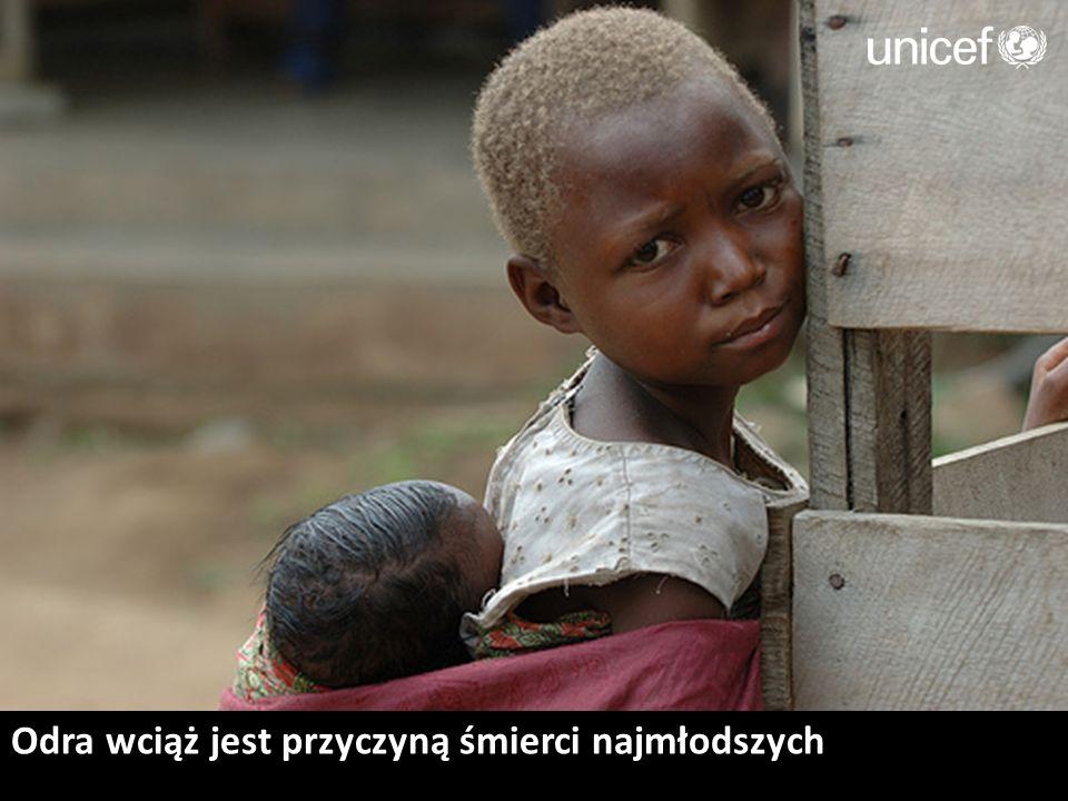 1/3 dzieci w Kongo cierpi głód i jest niedożywiona.