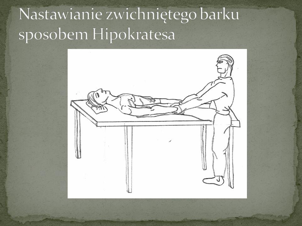 Nastawianie zwichniętego barku sposobem Hipokratesa