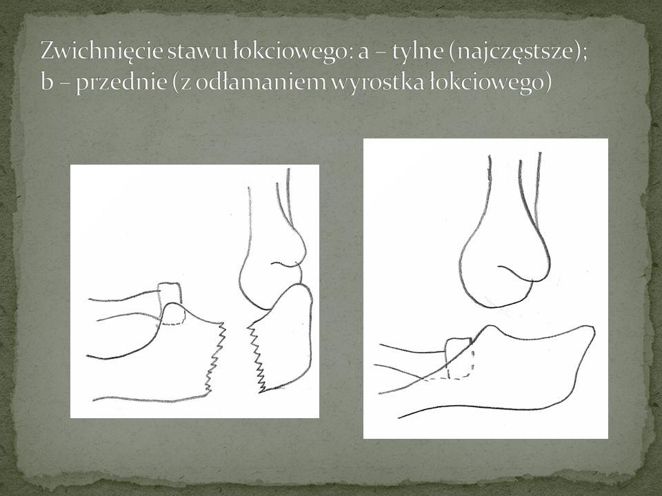 Zwichnięcie stawu łokciowego: a – tylne (najczęstsze); b – przednie (z odłamaniem wyrostka łokciowego)