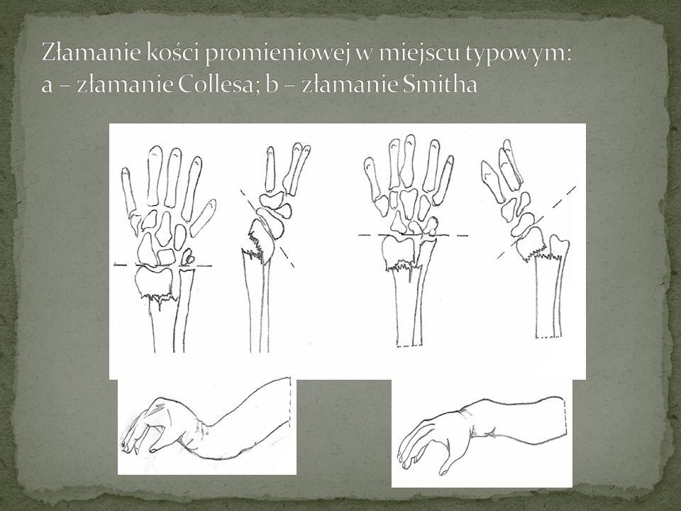 Złamanie kości promieniowej w miejscu typowym: a – złamanie Collesa; b – złamanie Smitha