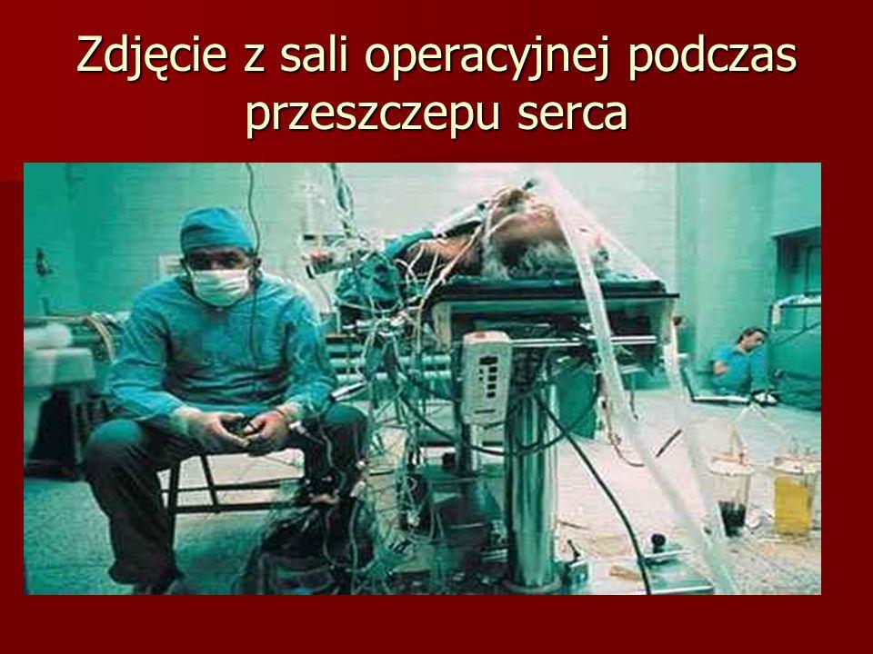 Zdjęcie z sali operacyjnej podczas przeszczepu serca