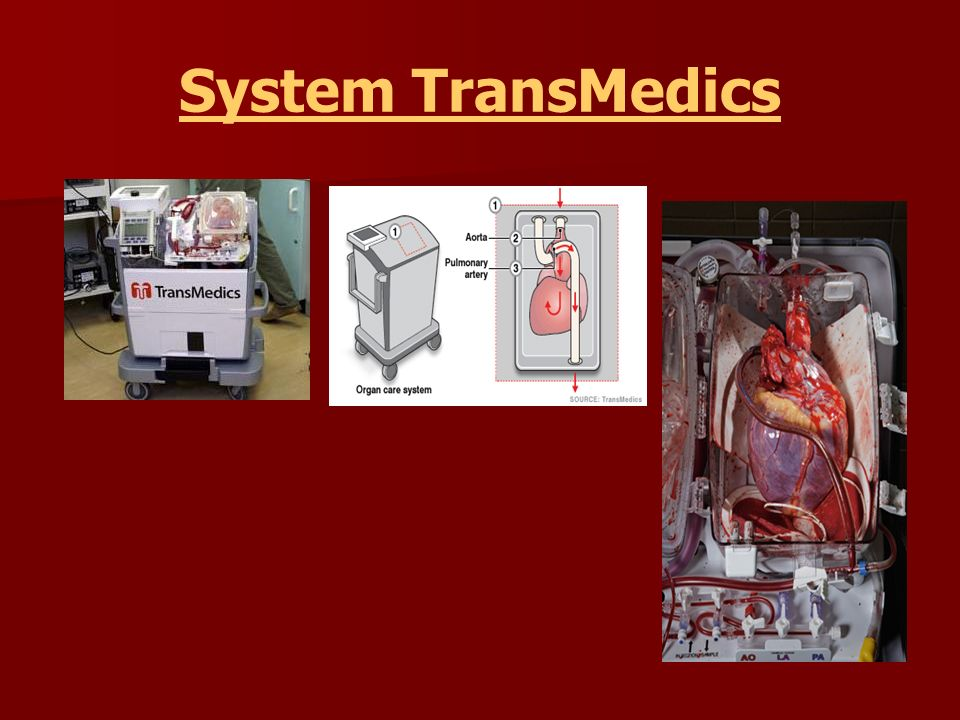System TransMedics