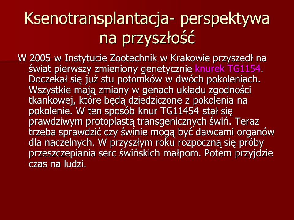 Ksenotransplantacja- perspektywa na przyszłość