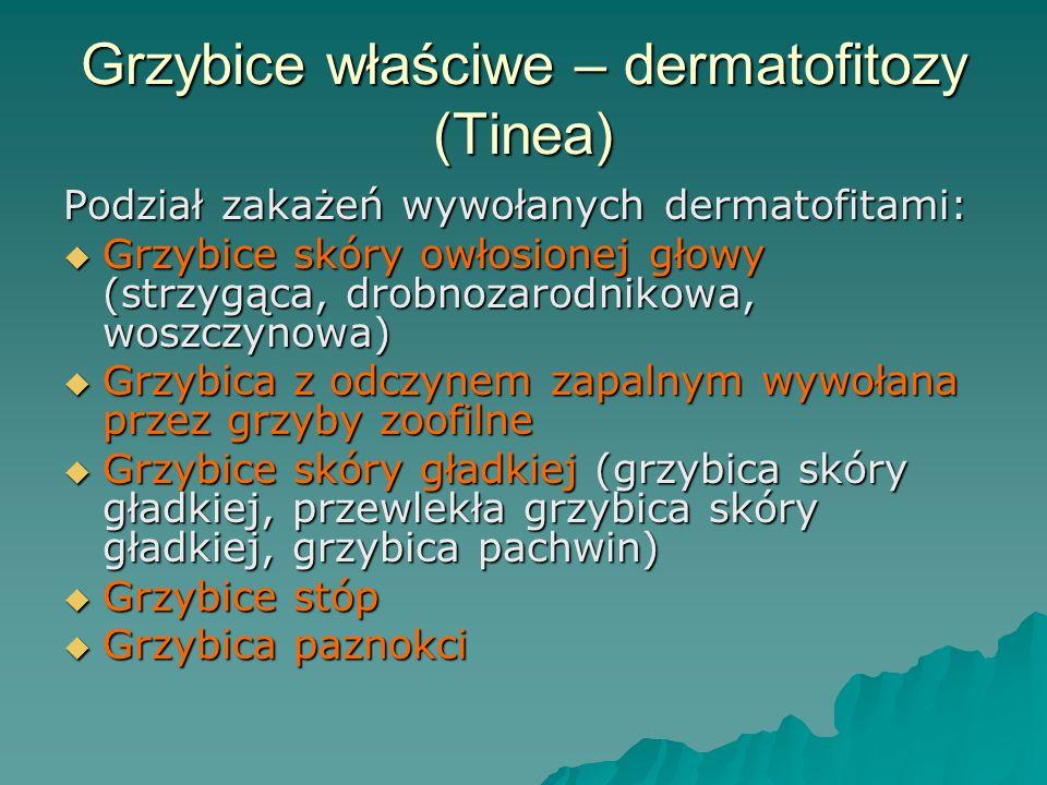 Grzybice właściwe – dermatofitozy (Tinea)