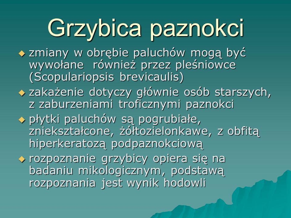 Grzybica paznokci zmiany w obrębie paluchów mogą być wywołane również przez pleśniowce (Scopulariopsis brevicaulis)