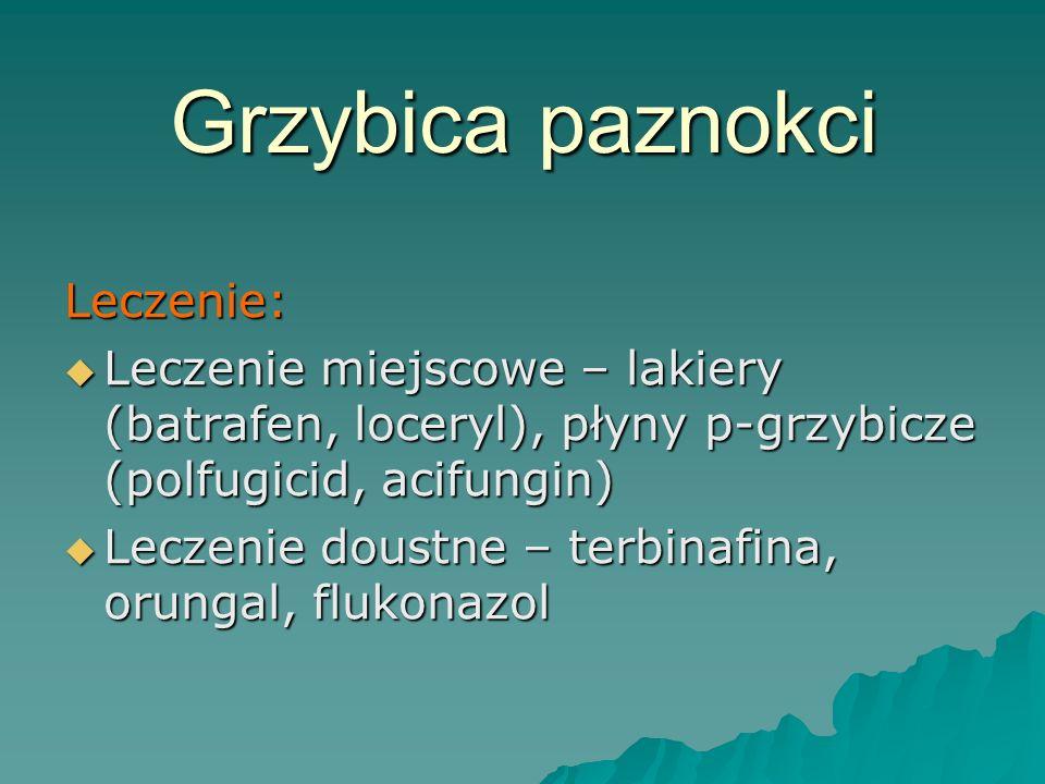 Grzybica paznokci Leczenie: