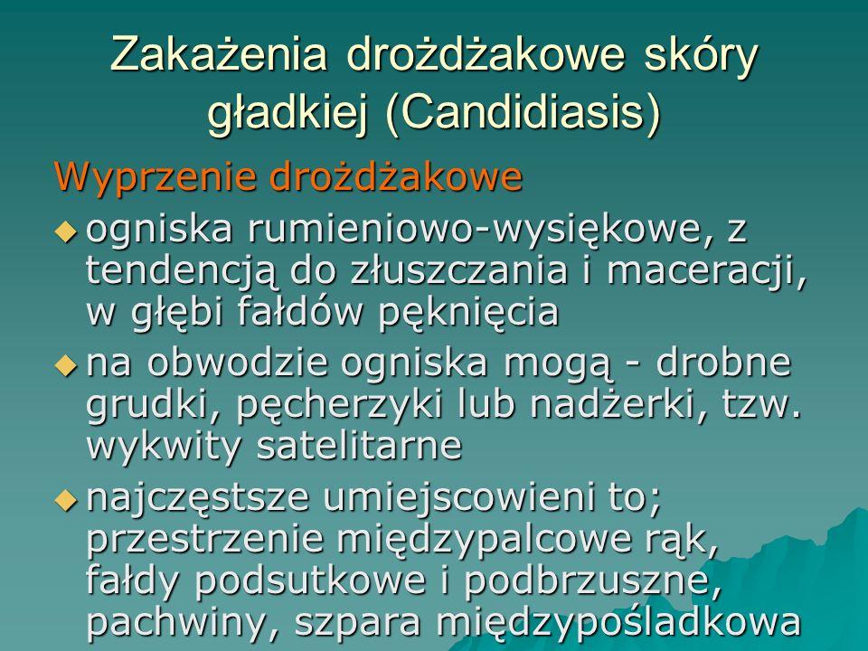 Zakażenia drożdżakowe skóry gładkiej (Candidiasis)