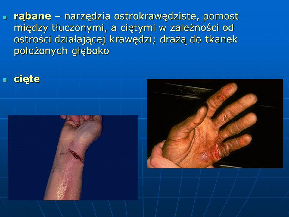 rąbane – narzędzia ostrokrawędziste, pomost między tłuczonymi, a ciętymi w zależności od ostrości działającej krawędzi; drażą do tkanek położonych głęboko