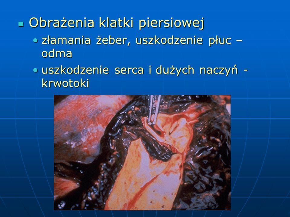 Obrażenia klatki piersiowej
