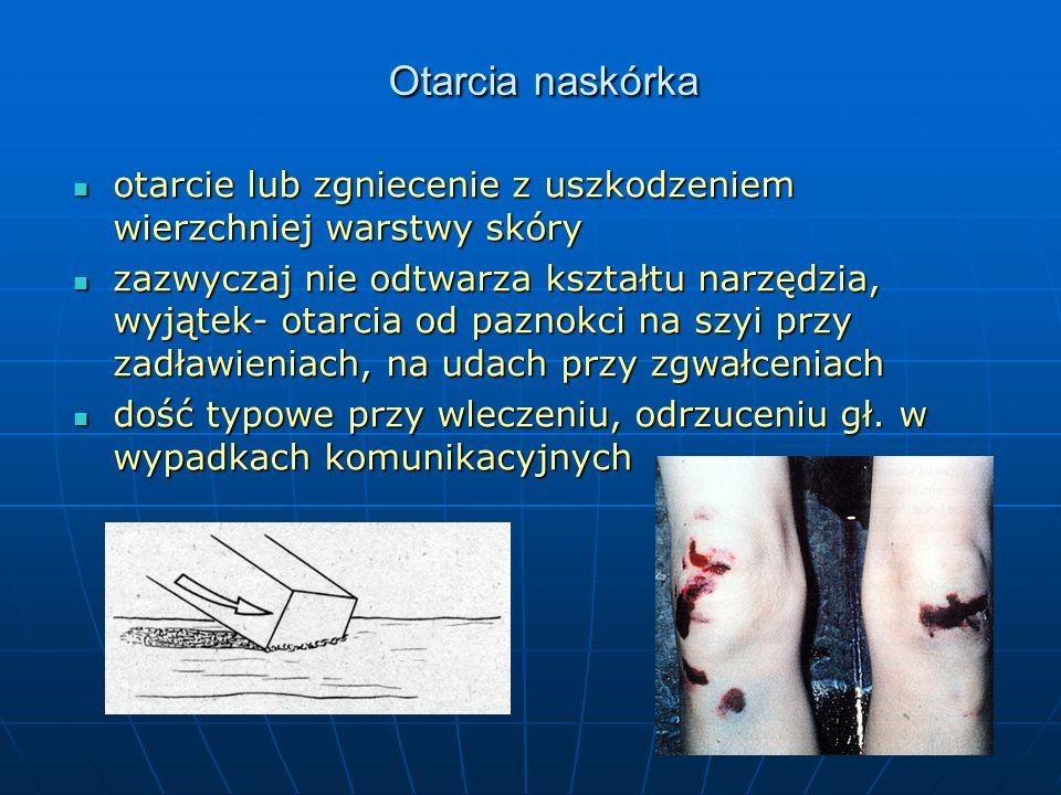 Otarcia naskórka otarcie lub zgniecenie z uszkodzeniem wierzchniej warstwy skóry.