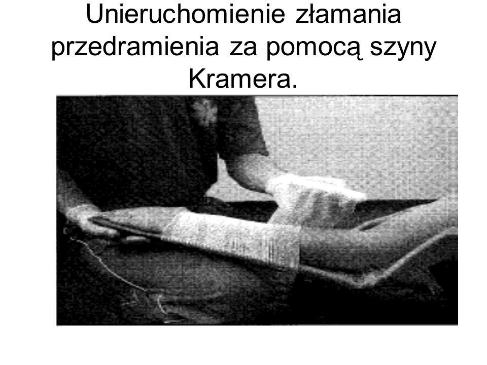 Unieruchomienie złamania przedramienia za pomocą szyny Kramera.