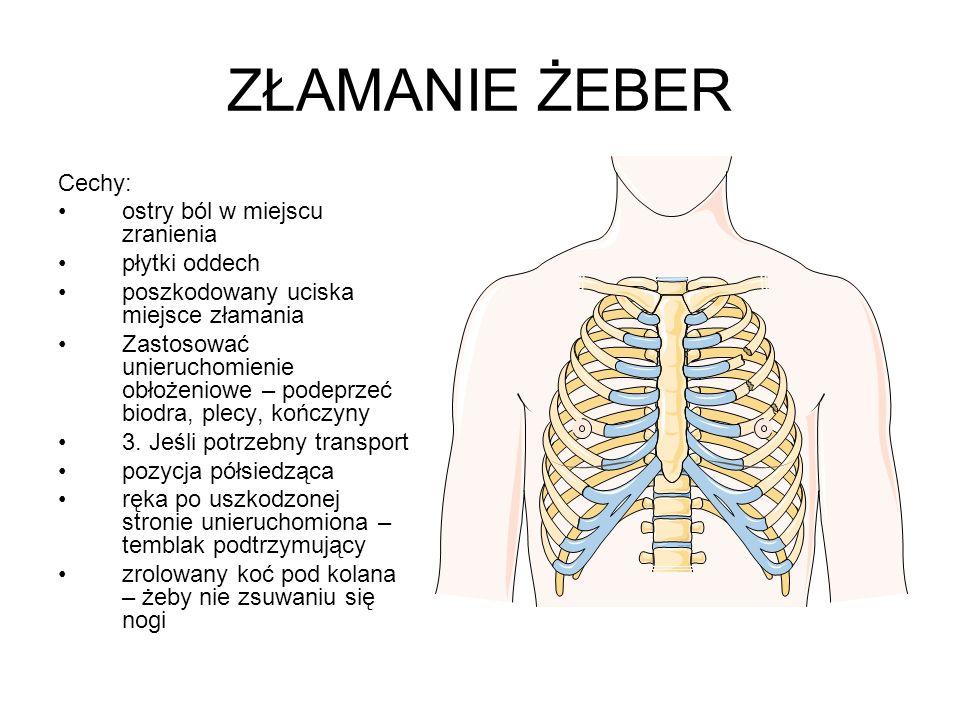 ZŁAMANIE ŻEBER Cechy: ostry ból w miejscu zranienia płytki oddech