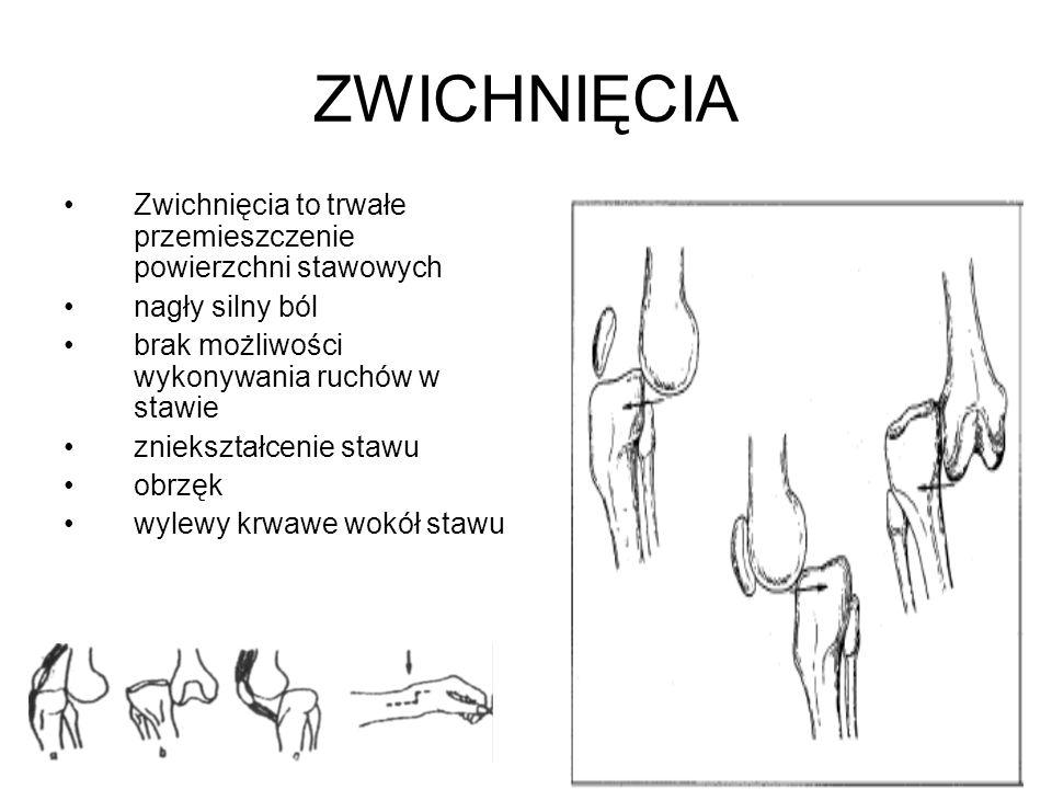 ZWICHNIĘCIA Zwichnięcia to trwałe przemieszczenie powierzchni stawowych. nagły silny ból. brak możliwości wykonywania ruchów w stawie.
