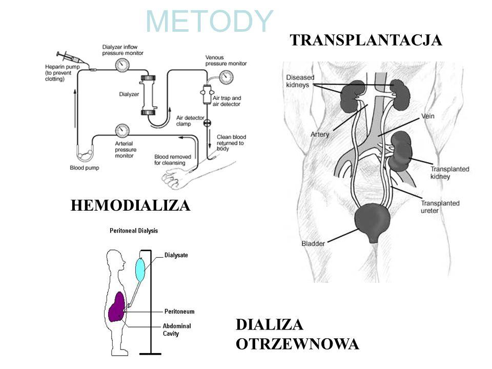 METODY TRANSPLANTACJA HEMODIALIZA DIALIZA OTRZEWNOWA