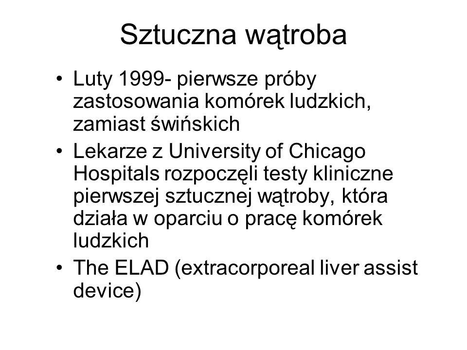 Sztuczna wątroba Luty 1999- pierwsze próby zastosowania komórek ludzkich, zamiast świńskich.