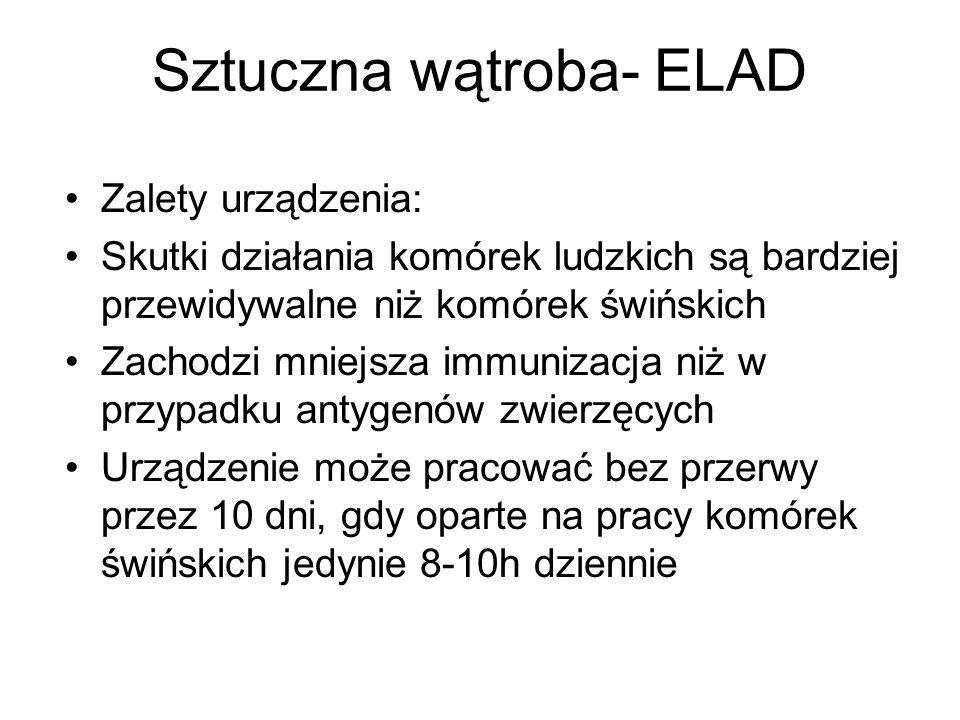 Sztuczna wątroba- ELAD