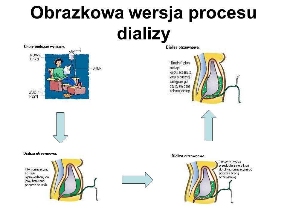 Obrazkowa wersja procesu dializy