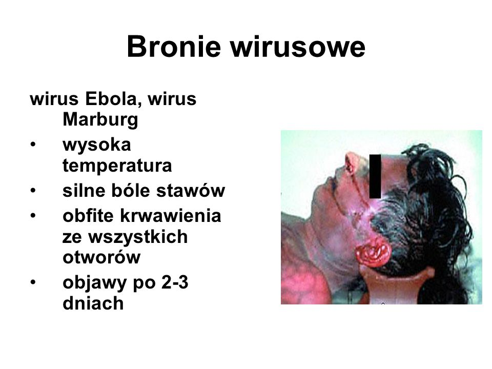 Bronie wirusowe wirus Ebola, wirus Marburg wysoka temperatura