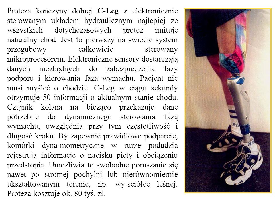 Proteza kończyny dolnej C-Leg z elektronicznie sterowanym układem hydraulicznym najlepiej ze wszystkich dotychczasowych protez imituje naturalny chód.