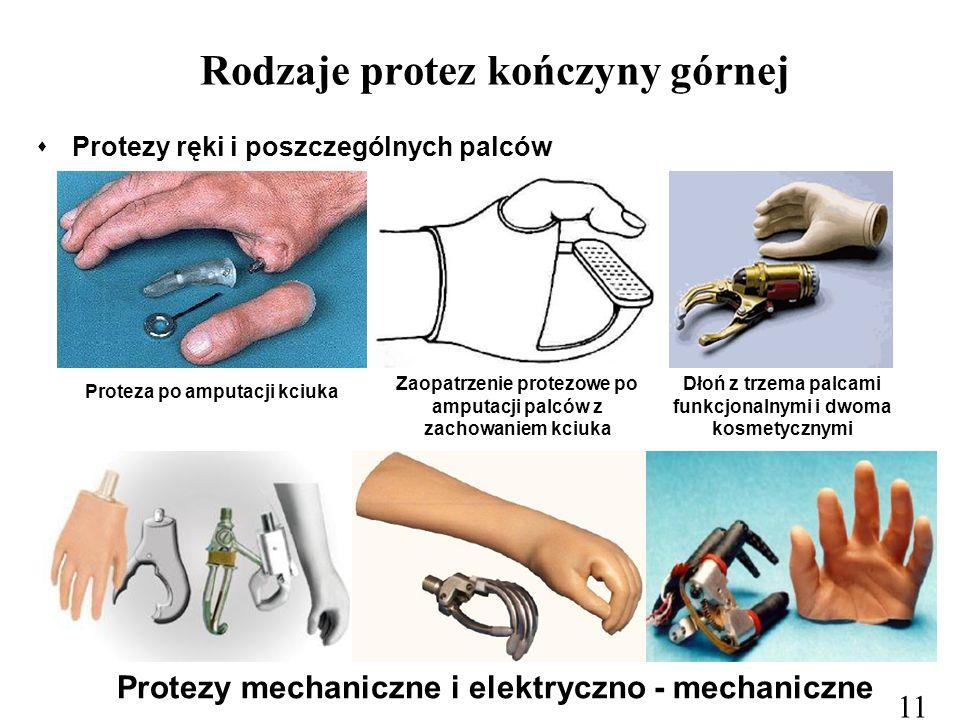 Rodzaje protez kończyny górnej
