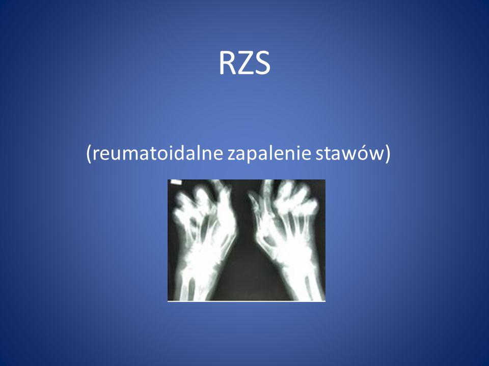 (reumatoidalne zapalenie stawów)