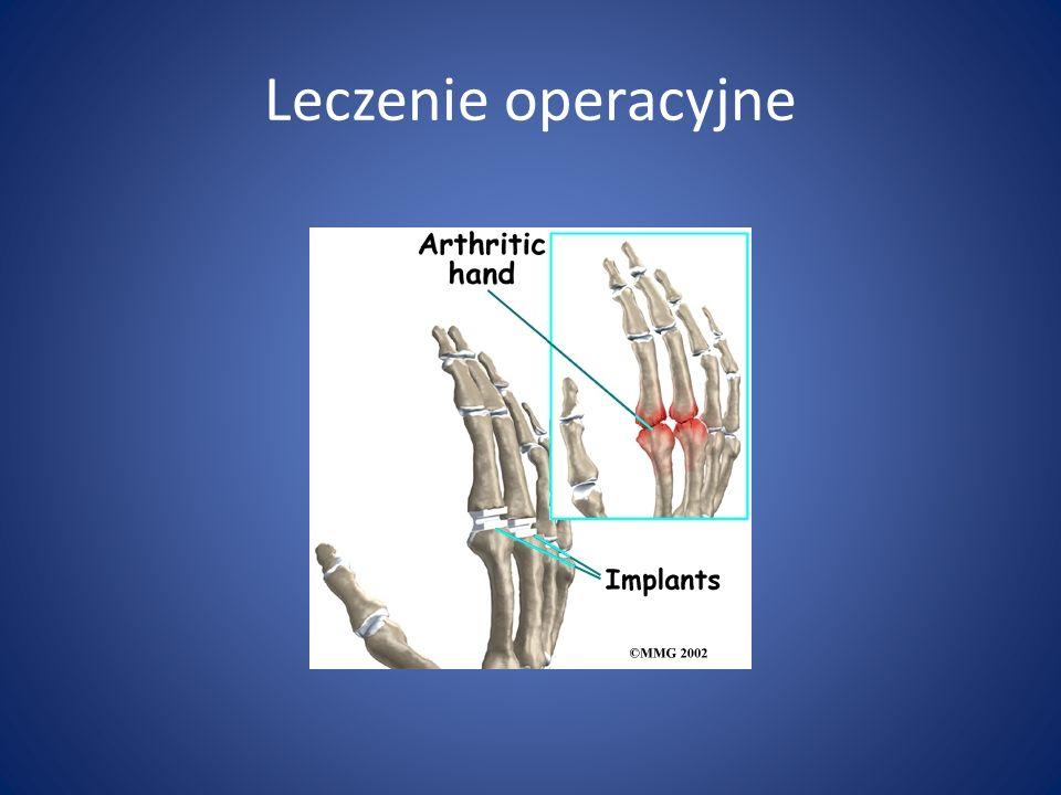Leczenie operacyjne