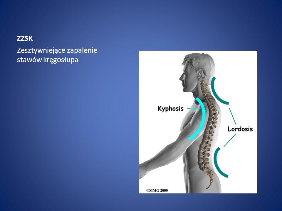 ZZSK Zesztywniejące zapalenie stawów kręgosłupa