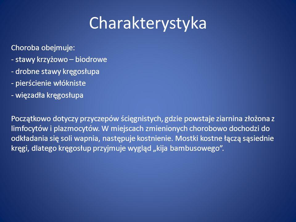 Charakterystyka Choroba obejmuje: stawy krzyżowo – biodrowe
