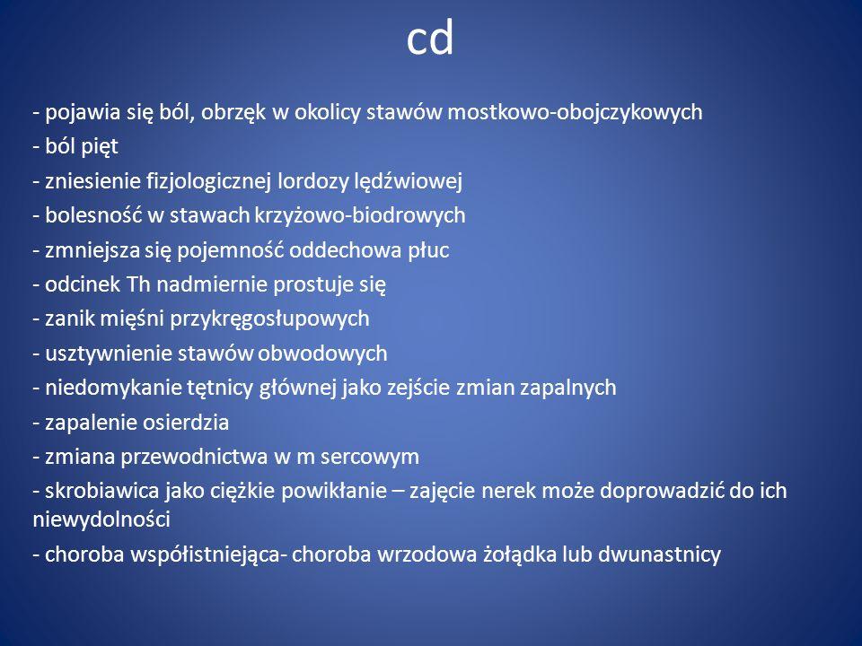 cd pojawia się ból, obrzęk w okolicy stawów mostkowo-obojczykowych