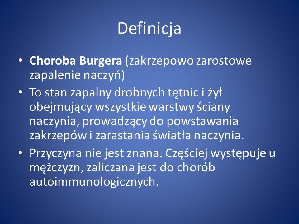 Definicja Choroba Burgera (zakrzepowo zarostowe zapalenie naczyń)