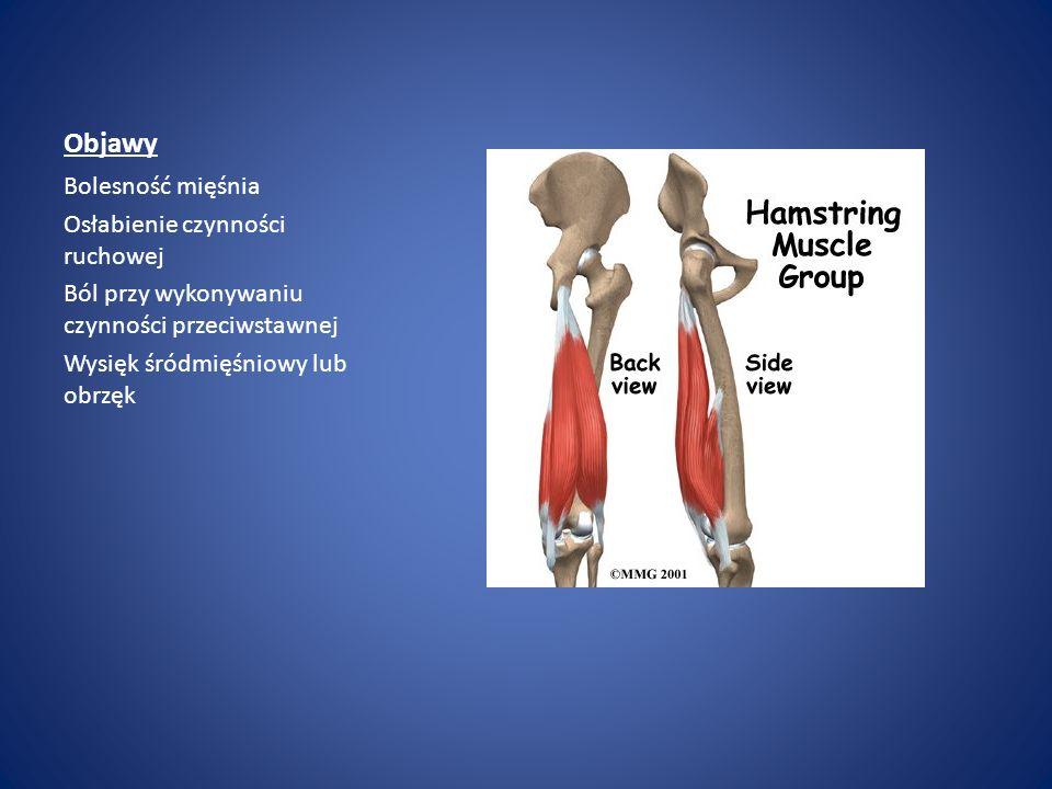 Objawy Bolesność mięśnia Osłabienie czynności ruchowej
