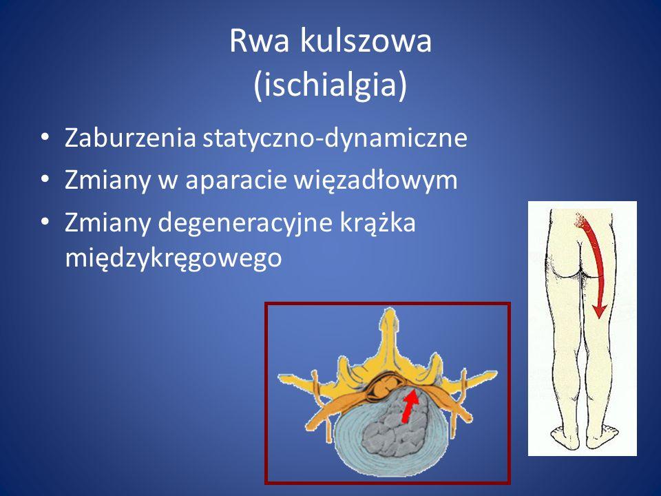Rwa kulszowa (ischialgia)