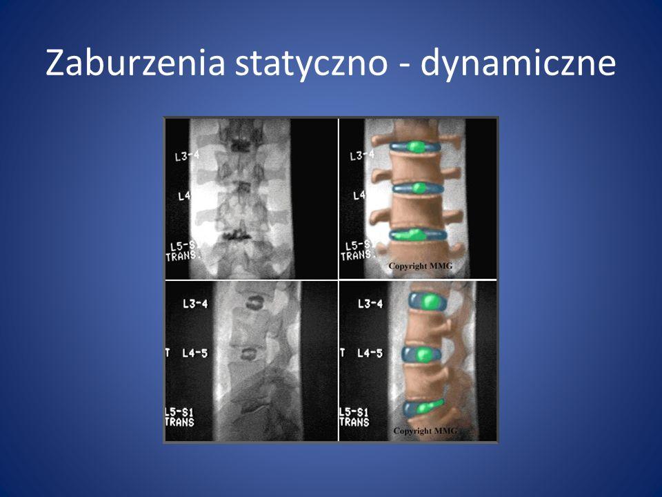 Zaburzenia statyczno - dynamiczne