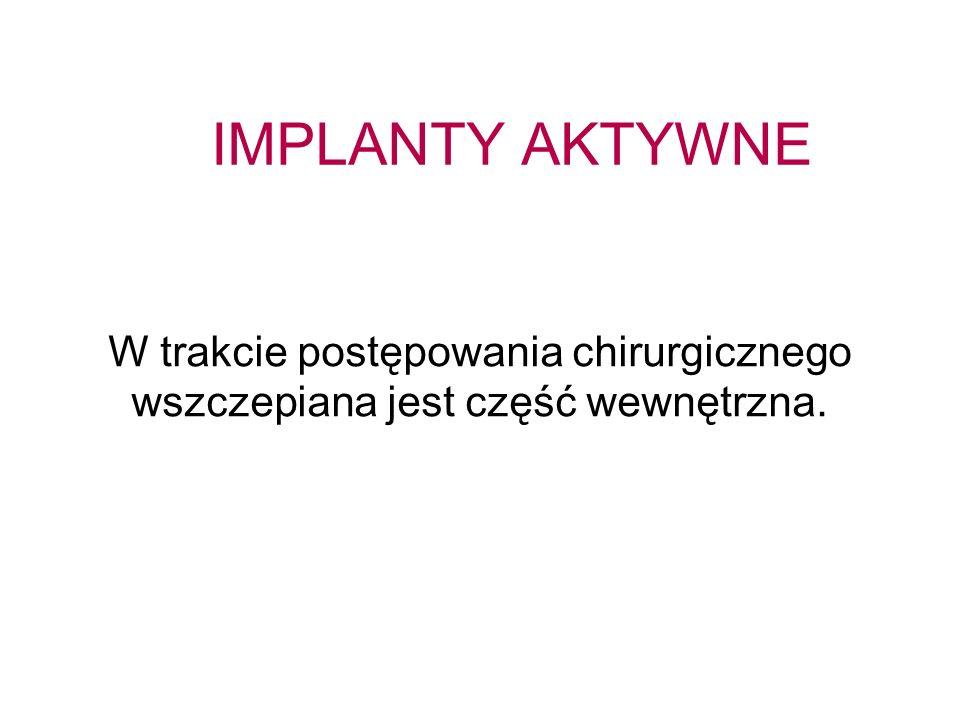 IMPLANTY AKTYWNE W trakcie postępowania chirurgicznego wszczepiana jest część wewnętrzna. 48