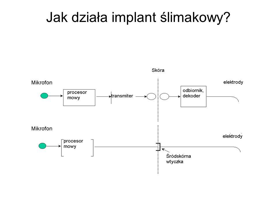 Jak działa implant ślimakowy