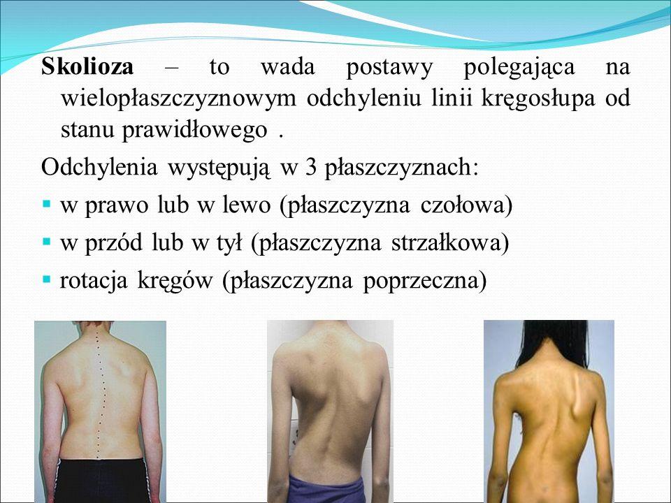 Skolioza – to wada postawy polegająca na wielopłaszczyznowym odchyleniu linii kręgosłupa od stanu prawidłowego .