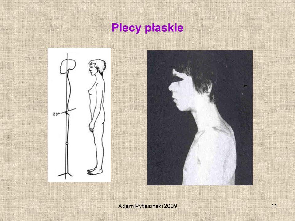 Plecy płaskie Adam Pytlasiński 2009