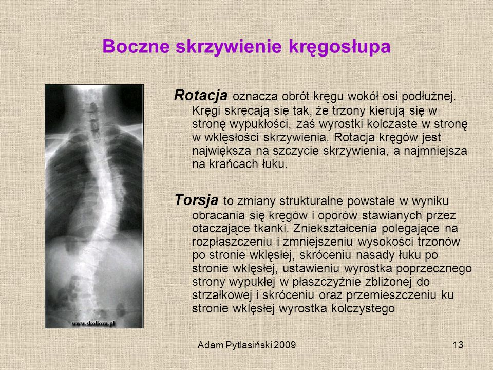Boczne skrzywienie kręgosłupa