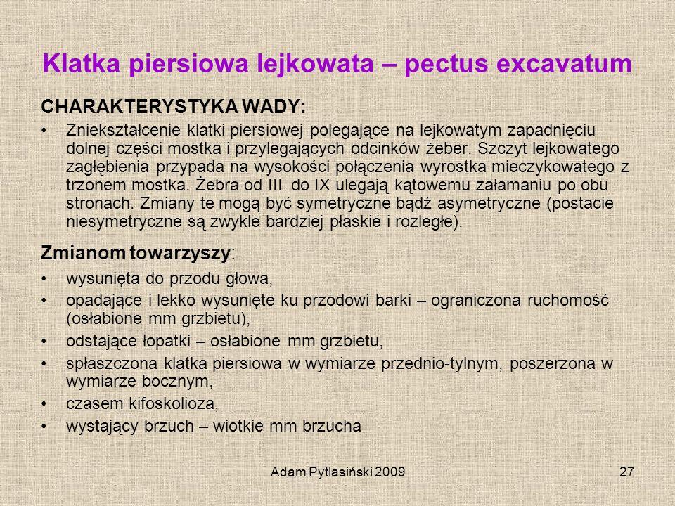 Klatka piersiowa lejkowata – pectus excavatum