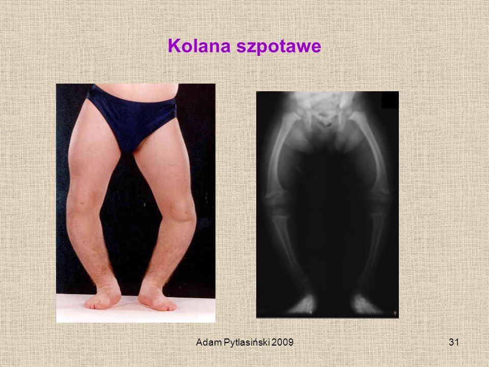 Kolana szpotawe Adam Pytlasiński 2009