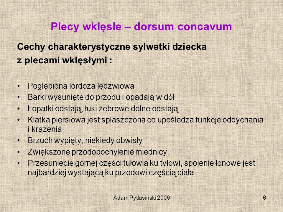 Plecy wklęsłe – dorsum concavum